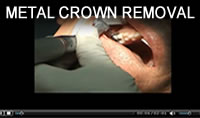 4) Metal Crown Removal with WAMkey