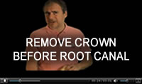 3) Remove Crown Before Root Canal